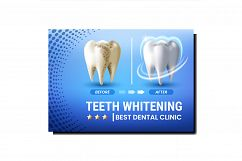 Teeth Whitening Creative Promotional Poster Vector Product Image 1
