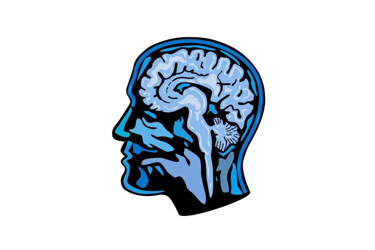 Brain Scanning Imaging Side example image 1