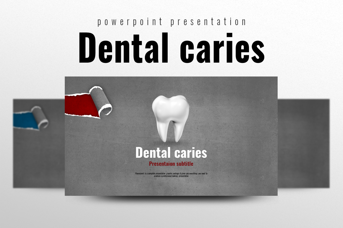 Dental Caries PPT example image 1