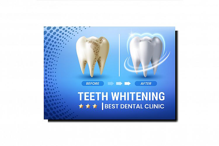 Teeth Whitening Creative Promotional Poster Vector example image 1