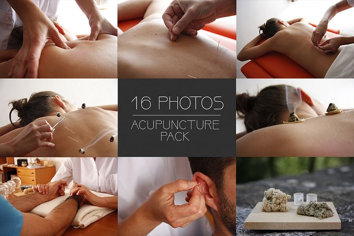 16 Acupuncture Photos
